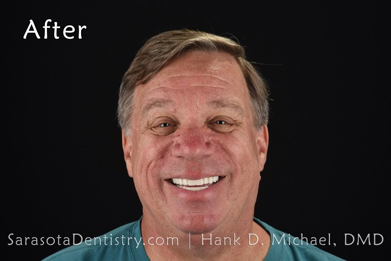 Dental Implants and Zirconia Crowns Smile Makeover