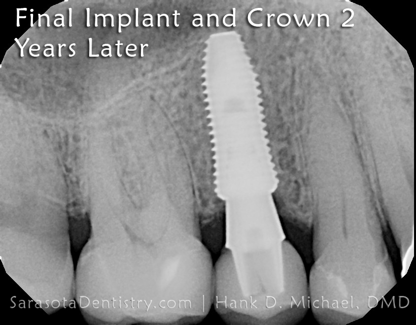 Dental Implant Case 7 immediate dental implant