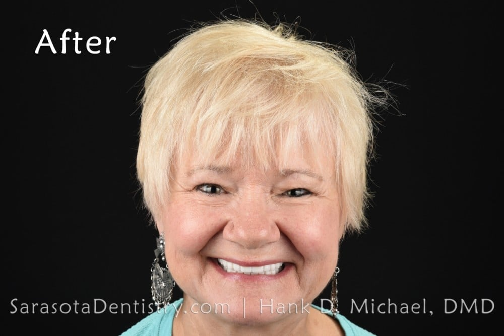 Smile Makeover by Dentist in Sarasota, FL