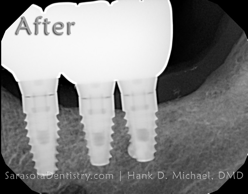 dental implant case 11-3